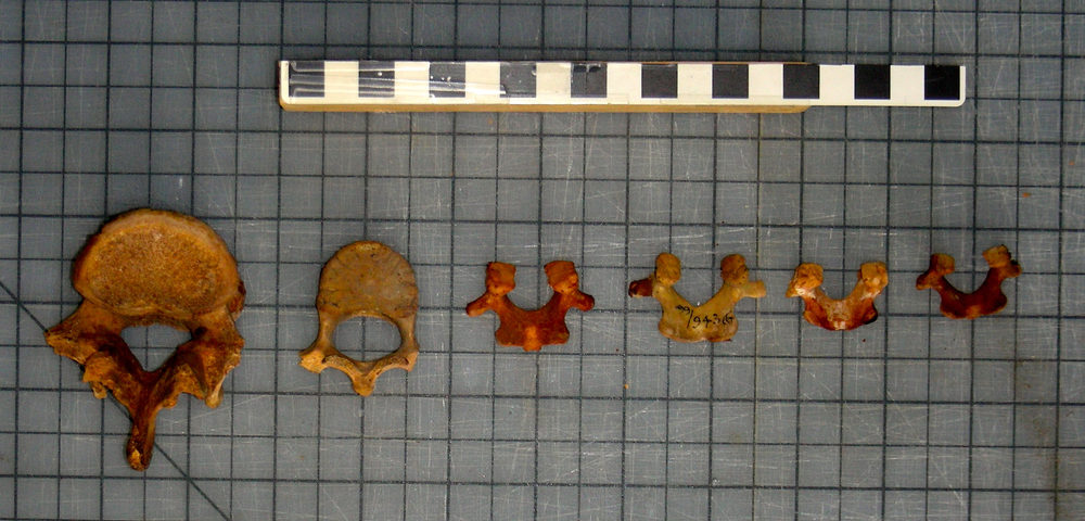 Age sequence (adult to infant, left to right) of human, first lumbar vertebrae
