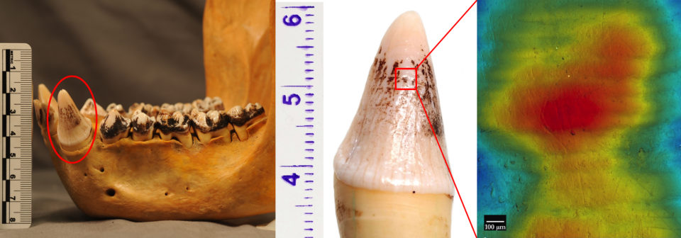 Left: Male mountain gorilla mandible. Middle: Left mandibular canine from the same individual. Right: High-resolution scan of enamel hypoplasia on the tooth surface.